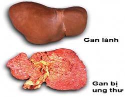 Ung thư gan thường xuất hiện âm thầm