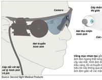 Bùng nổ công nghệ phục hồi thị lực người khiếm thị
