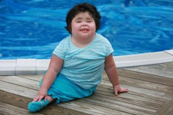 Cô bé 'người cá' qua đời vì viêm phổi