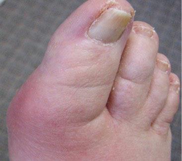 Bị gout hay viêm khớp?