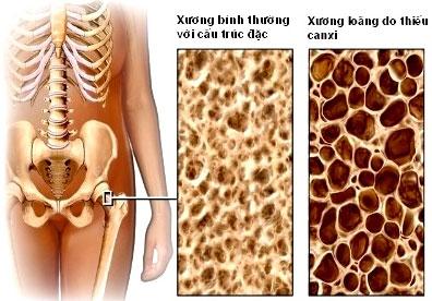 Loãng xương - Căn bệnh âm thầm
