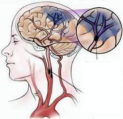 Phương pháp điều trị nhồi máu não bằng siêu âm