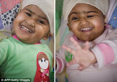 Kinh ngạc về ca phẫu thuật tách hai bé gái dính liền đầu