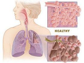 Sử dụng tế bào gốc chữa bệnh phổi tắc nghẽn