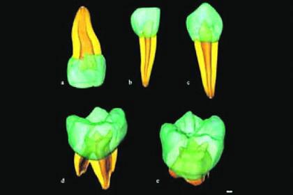 Nghiên cứu tiến hóa qua răng 30.000 năm trước