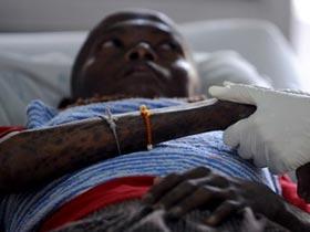 Liệu pháp gen - Vũ khí mới để điều trị HIV/AIDS
