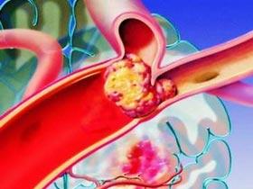 Thuốc t-PA có thể tái sinh các cơ quan sắp chết