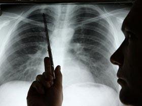 Liệu pháp xạ trị mới cho bệnh nhân ung thư phổi