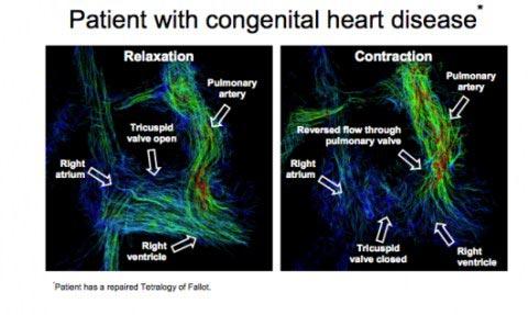 Công nghệ chụp ảnh tim 4D