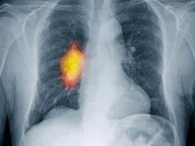 Người không hút thuốc vẫn bị ung thư phổi