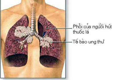 Xét nghiệm cảnh báo ung thư phổi ở người hút thuốc