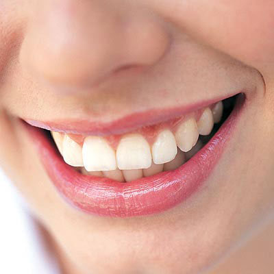 Số lượng răng thật liên quan đến bệnh tim mạch