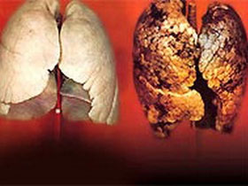 Thuốc metformin có thể ngăn ngừa ung thư phổi
