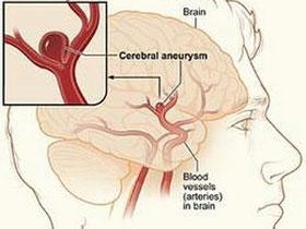 Dị tật về tim dễ bị chứng phình động mạch não
