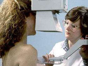 Gen RAD51C gây ung thư tuyến vú và buồng trứng