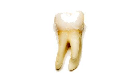 Răng sâu tự liền