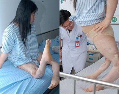 Cô gái có đôi chân cong kỳ lạ