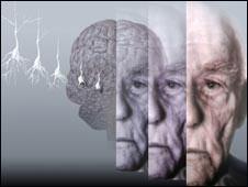 Người mắc chứng trầm cảm dễ bị mất trí