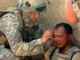 Binh lính bị thương ở não nhiều nguy cơ bị động kinh