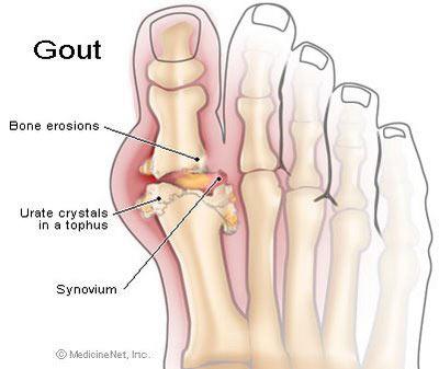 Đường Fructoza và bệnh gout, bệnh gan nhiễm mỡ