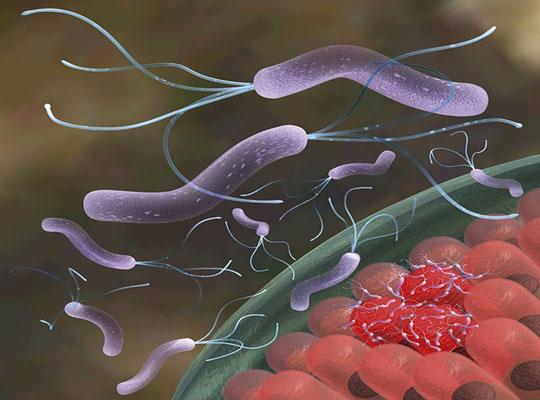 Vi khuẩn Helicobacter Pylori giúp ngăn bệnh suyễn
