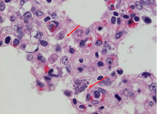 Protein giúp ký sinh trùng sống trong tế bào chủ