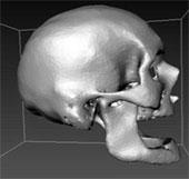 Quét CT sọ người sống phục vụ pháp y