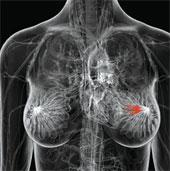 Xét nghiệm gene giúp thay đổi cách điều trị ung thư vú