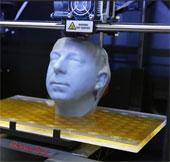 Tái tạo xương chậu bằng titan nhờ vào công nghệ in 3D