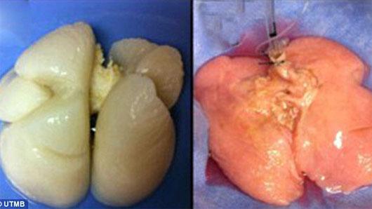 Lần đầu tiên tái tạo thành công phổi người