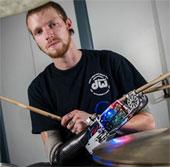 Cánh tay robot giúp người mất tay vẫn chơi được trống