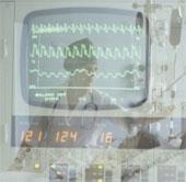 Khoa học Nga chế tạo máy đếm nhịp tim thông minh