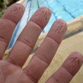 Vì sao tay người trẻ bị nhăn khi ngâm nước, tay người già thì không?