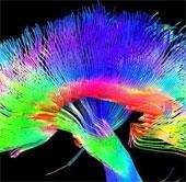 Họa sĩ có cấu trúc não bộ khác với người thường