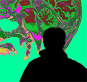 Người hoài nghi có khả năng mắc bệnh mất trí nhớ