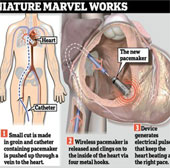 Cấy thành công máy điều hòa nhịp tim không dây