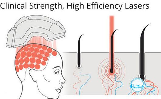 Mũ bảo hiểm giúp mọc tóc
