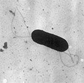 Thiết bị phát hiện nhanh vi khuẩn gây ngộ độc thực phẩm