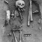 Ca bệnh Down đầu tiên trong lịch sử nhân loại