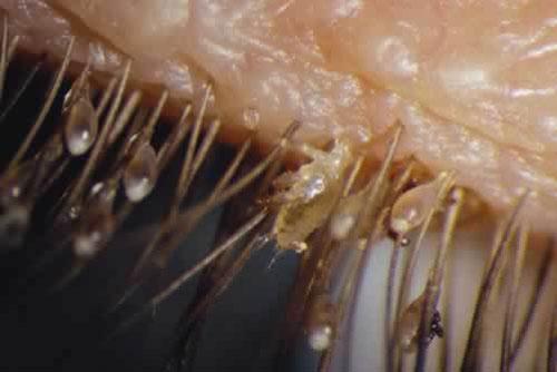 """Cách phòng ngừa rận mu - Loài côn trùng bám chặt ở """"vùng kín"""""""