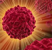 Dùng cảm biến nano chẩn đoán sớm ung thư
