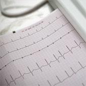 Chụp ảnh mặt chẩn đoán tình trạng tim