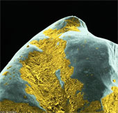 Hình dạng vi khuẩn bám trên răng người