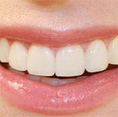 Đoán tính cách và đoán bệnh qua hàm răng
