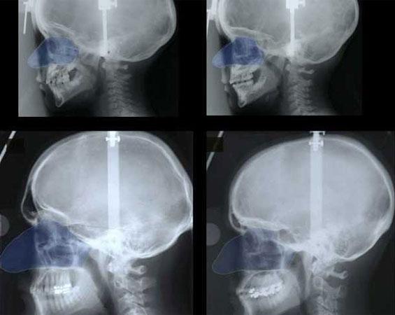 Kích cỡ của mũi có liên kết chặt chẽ với các nhu cầu của hệ hô hấp