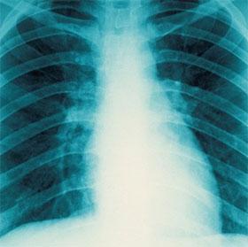 Tìm hiểu cơ chế tự tái tạo xương ngay trong cơ thể