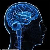 Tính cách con người thế nào là do cấu trúc não