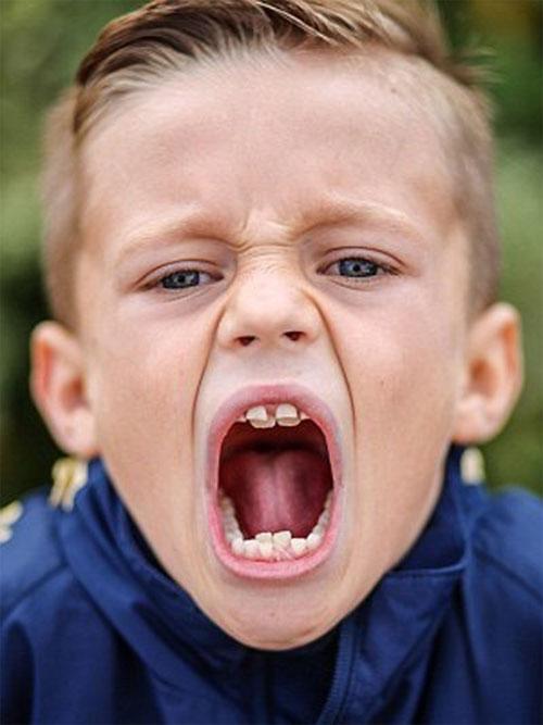 Cậu bé có hàm răng cá mập