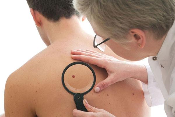 Chẩn đoán bệnh qua làn da