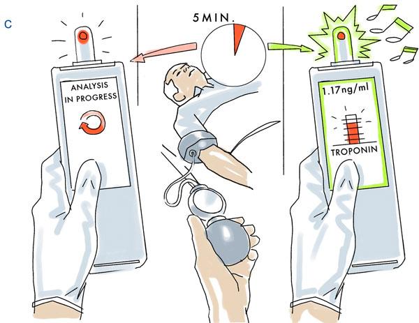 Philips Minicare: Hệ thống xét nghiệm tại chỗ trong tương lai